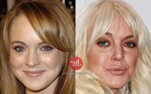 botox_Lindsay-Lohan_implants_www.antesydespues.com.ar[1]